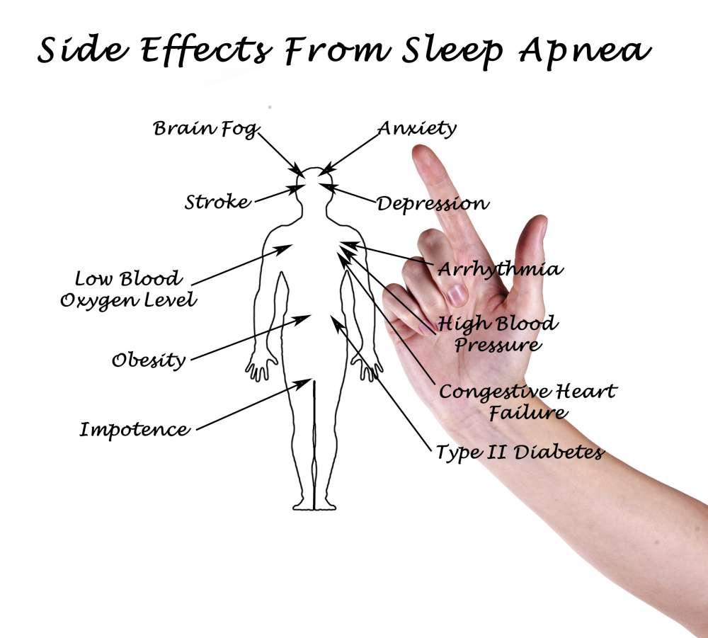 SLEEP APNEA: DON'T SLEEP ON IT!